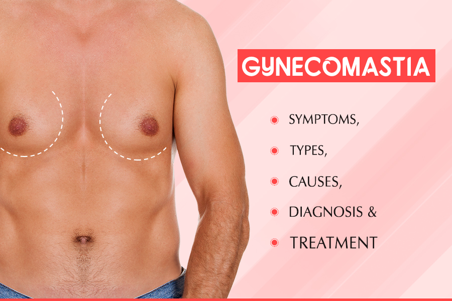 Gynecomastia Causes And Precautions You Need To Know About